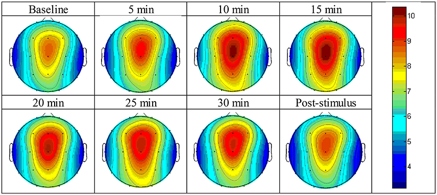 Binaural Beats Benefits - Brain Response To The Binaural Sounds
