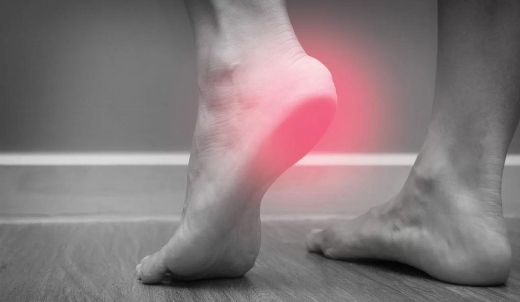How to Cure Plantar Fasciitis in One Week & Reduce the Foot Pain