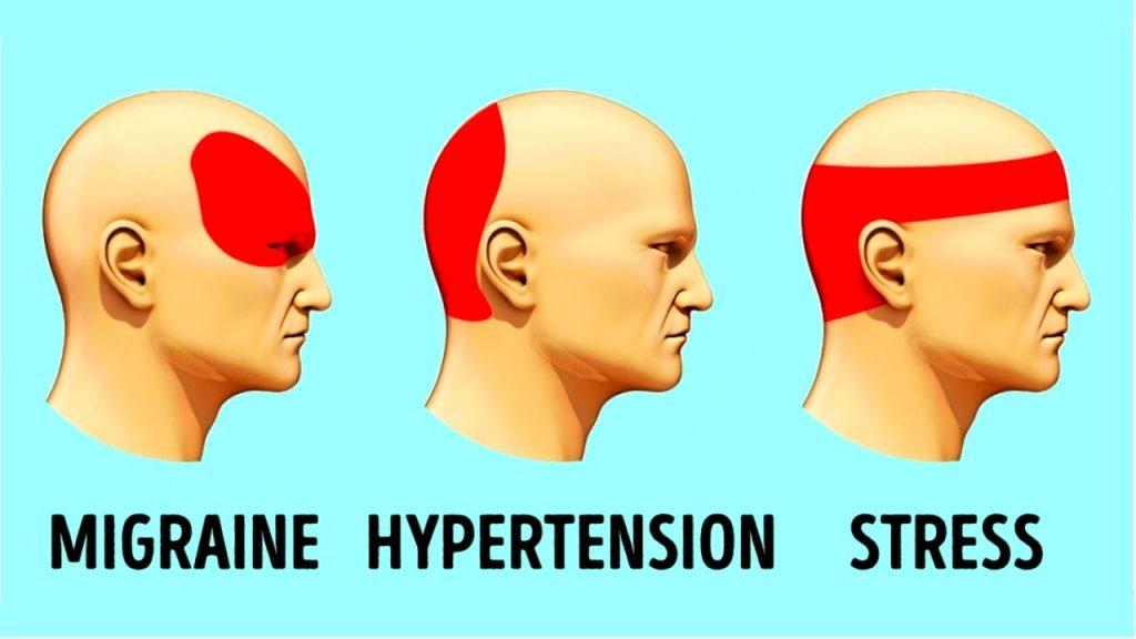 How to Get Rid of a Headache Fast Headache Relief Tricks