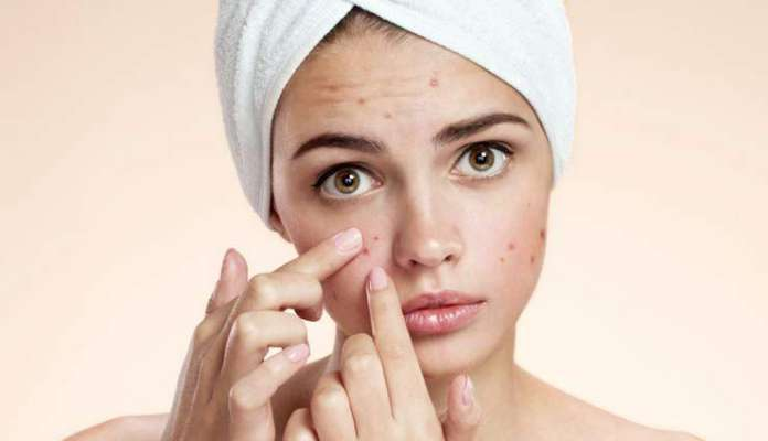 How to Remove Pimple Marks in One Day Home Remedies