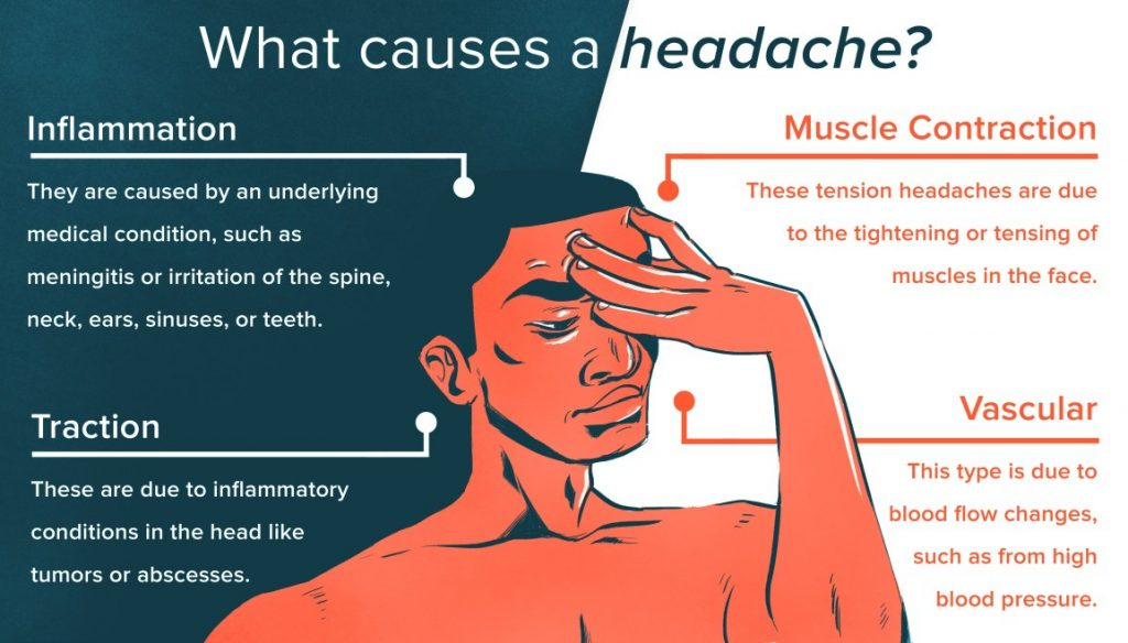 causes How to Get Rid of a Headache Fast Headache Relief Tricks