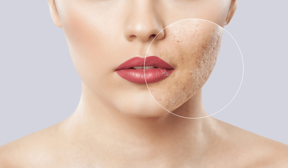 Best Cream for Acne Scars and Dark Spots - Buying Guide