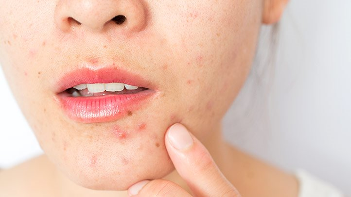 Best Essential Oil for Acne Scars Buying Guide